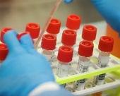 В Калмыкии выявили британский штамм коронавируса